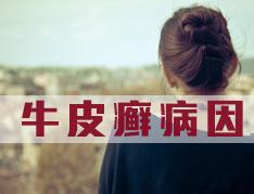 女性患牛皮癣是什么原因