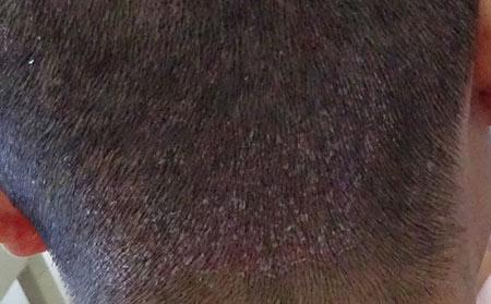 牛皮癣是一种遗传性皮肤病吗