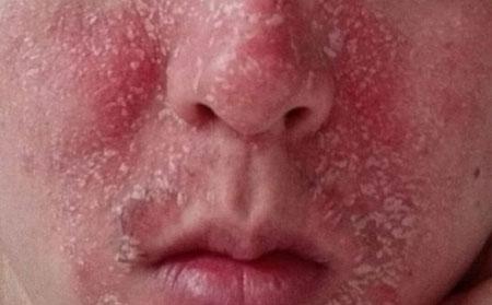 不同发病部位牛皮癣的症状图片